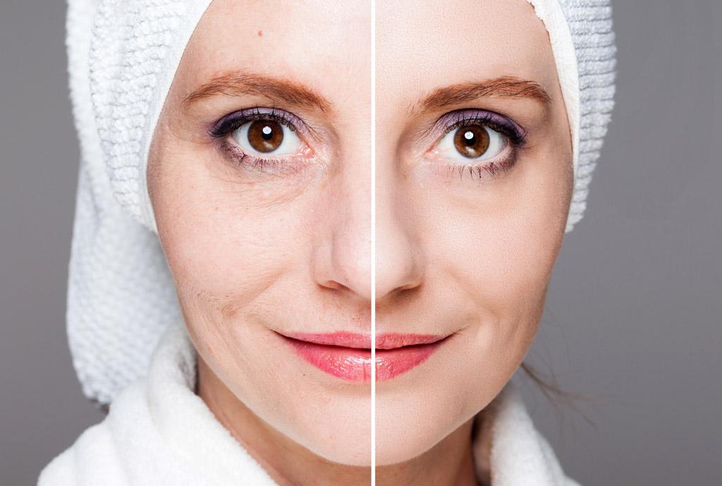 Dermio Care Facial: Vorher - Nachher - rosiger Teint, straffe Haut, gegen Augenpölsterchen